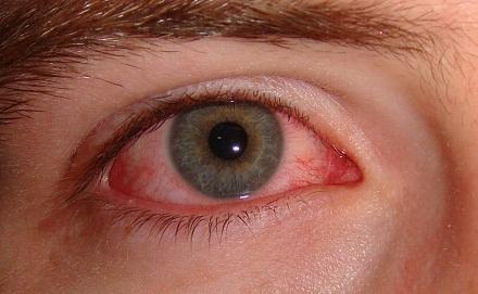 بیماری چشم صورتی یا التهاب ملتحمه ی چشم